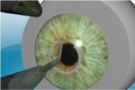 http://www.medicalvision.cz/media/KERARING/ker_obr_str_2.jpg