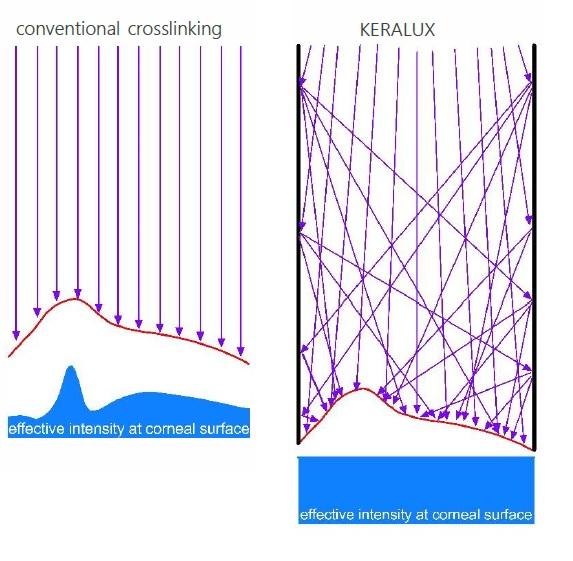 http://www.medicalvision.cz/media/Keralux/Effective_intensity.jpg